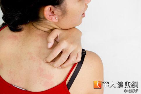 台北市立万芳医院皮肤科近日在门诊发现,罹患带状疱疹患者明显增多1成