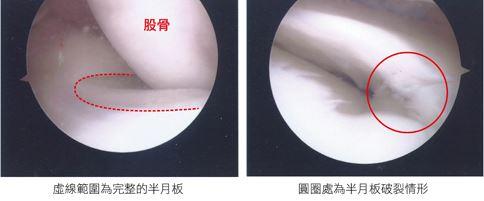 35歲男子手術前後的半月板狀態。(圖片提供/台中澄清醫院)