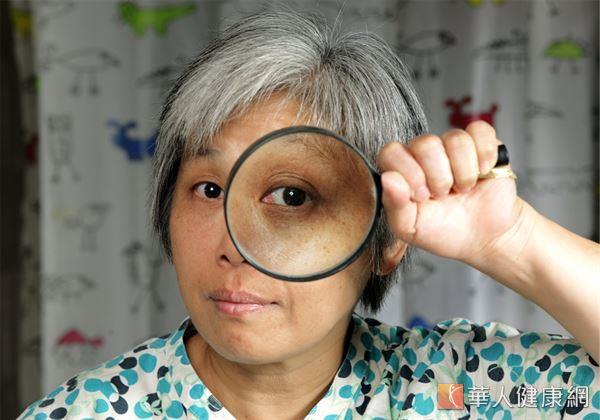 沒有眼睛紅痛、想吐、頭暈目眩症狀,就不可能罹患青光眼?