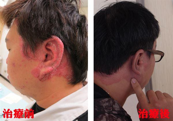 邱先生在接受乾癬治療後,1/2的病灶已消失,狀況已獲得顯著的控制。(圖片/衛生福利部雙和醫院提供)