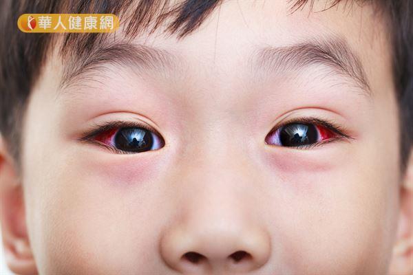 單純的微血管破裂時,眼睛常常紅得像兔子一樣,但通常對眼球沒有傷害。