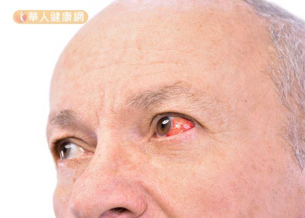 疲勞、打噴嚏、便祕、咳嗽都有可能造成眼球微血管破裂。