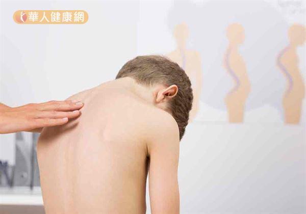 脊椎側彎好發兒童與青少年,對健康及心理影響很大。