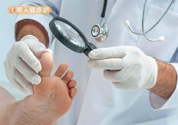 梅雨季節,黴菌孳生常讓足部容易出現香港腳與灰指甲。