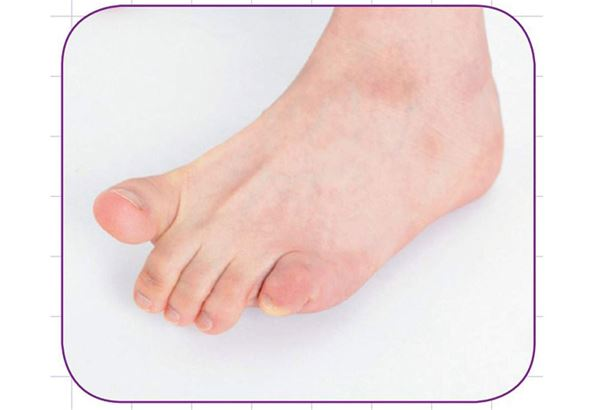 1.石頭:使腳趾整個捲曲起來,變成接近球狀。(圖片提供/瑞麗美人國際媒體)