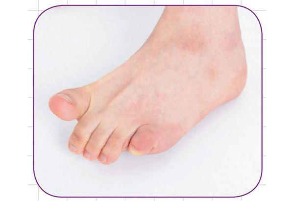 2.剪刀:拇趾和其它4隻腳趾分別向前後移動,相反側也再做一次。(圖片提供/瑞麗美人國際媒體)