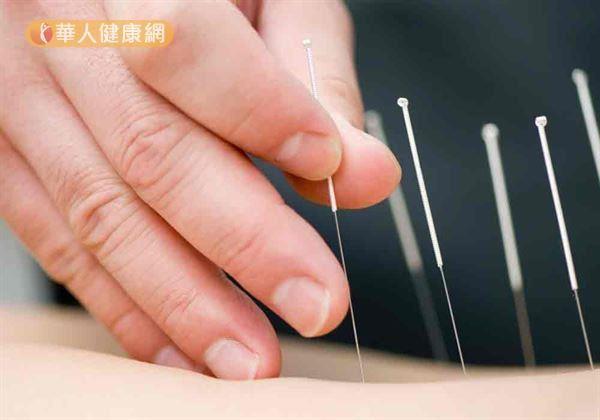 利用針灸治療,可緩解運動拉筋疼痛症狀。