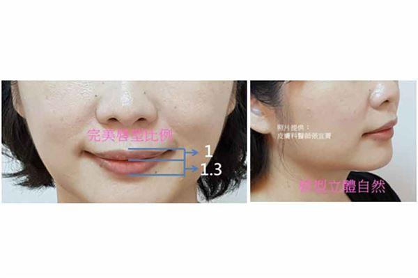玻尿酸注射雕塑「唇珠、唇峰、唇線、人中、調整上下唇比例」成果。治療效果因人而異,請向皮膚科醫師諮詢。(圖片/張宜菁醫師提供)