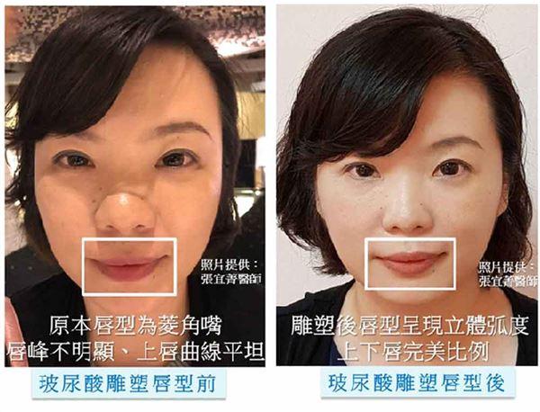 「玻尿酸注射美化唇型」術前後照片。治療效果因人而異,請向皮膚科醫師諮詢。(圖片/張宜菁醫師提供)