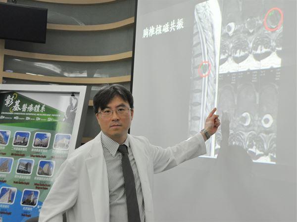 陳建民醫師發現「胸椎第七節腫瘤—脊膜瘤」是導致陳秀玉的雙腳麻木、無力的主因。(圖片提供/彰化基督教醫院)