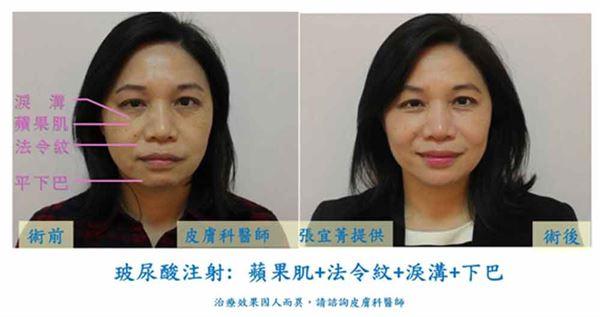 玻尿酸微整形注射「蘋果肌+法令紋+淚溝+下巴」術前後照片。(治療效果因人而異,請諮詢皮膚科醫師)(圖片/張宜菁醫師提供)