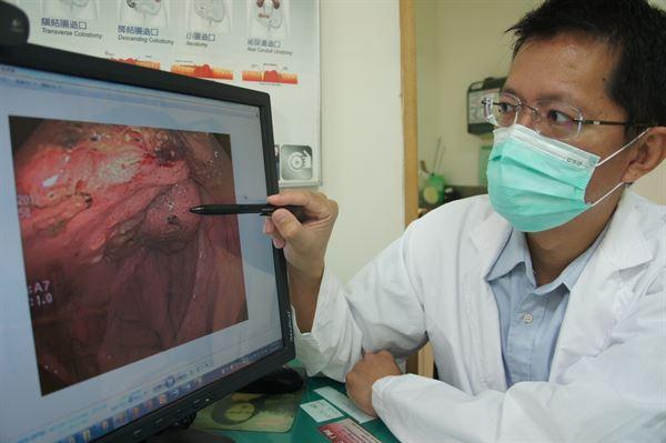 吳喬森醫師說明吳阿嬤是嚴重出血型的大腸癌個案,到院時血紅素僅5.5 g/dL。(圖片提供/光田醫院)
