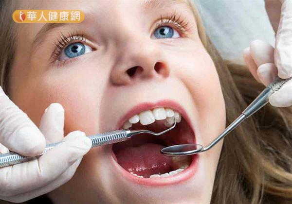 咬合不正除了影響外觀,還可能會造成孩童咀嚼功能障礙。