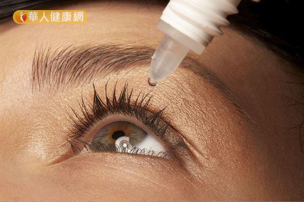 市售眼藥水可能含有防腐劑和類固醇成分,過度依賴恐加劇眼睛過敏不適或導致青光眼。