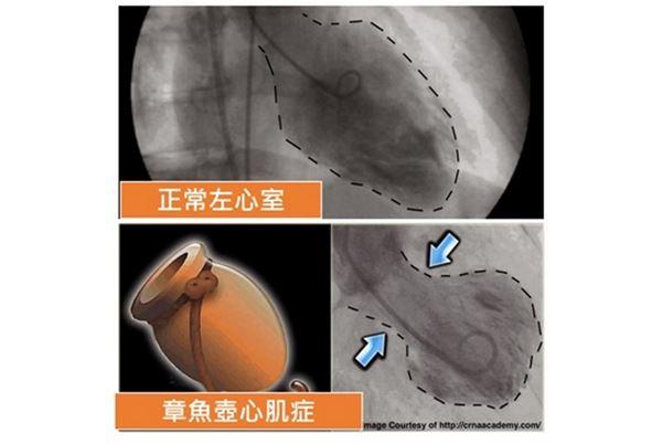 正常左心室與章魚壺心肌症。(圖片提供/翁國昌醫師)