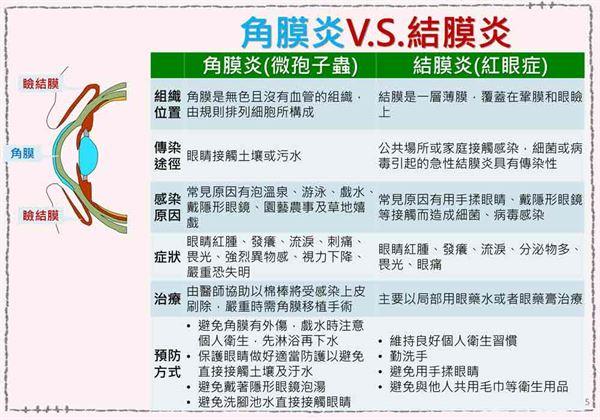 角膜炎和結膜炎都是常見的、多發性眼部疾病,很容易混淆。(圖片提供/新北市衛生局)