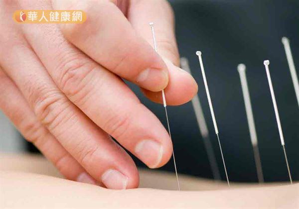 中醫針灸治療經痛效果顯著,有助於即時緩解疼痛。