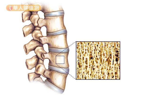 研究已證實抽菸會讓造骨細胞的活力下降、維生素D3濃度降低,導致骨質快速流失。