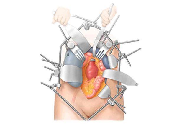 腹主動脈瘤的傳統治療為開腹手術,主要是透過從腹部劃開約20到40公分之傷口,進入到腹主動脈瘤的位置,切除腹主動脈瘤並以人工血管將之置換做直接修補。(圖片/劉亮廷主任提供)