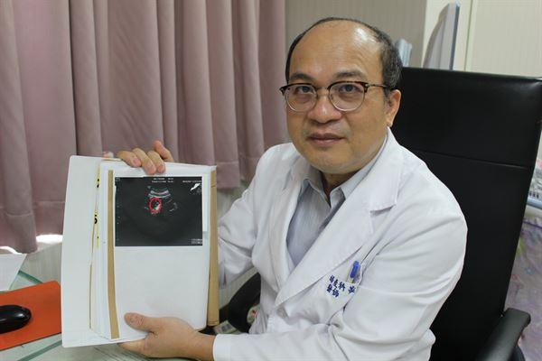 黃一文醫師指出超音波影像的卵巢畸胎瘤。(圖片提供/衛福部台中醫院)