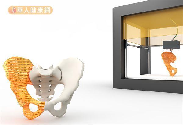 三軍總醫院已經將3D影像模擬及列印技術,率先應用於骨盆腫瘤切除病人。