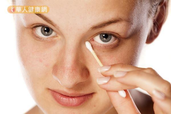 用棉花棒沾濕眼瞼清潔液後,輕輕擦拭眼瞼靠近睫毛根部處,可以預防眼瞼緣炎。