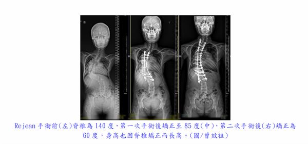 (圖片提供/台北慈濟醫院)