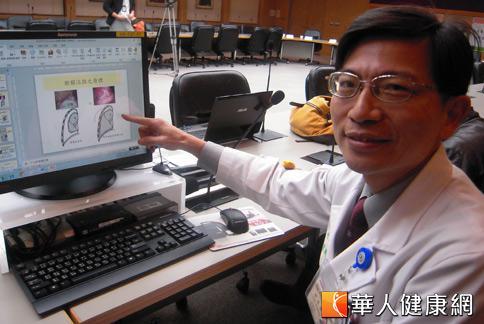 台大醫院胸腔外科醫師陳晉興表示,團隊進行5年的臨床研究,驗證若抽氣後再追加抗生素「美諾四環素」做為肋膜沾黏劑,可將復發率降低4成,國際權威期刊LANCET也建議,未來治療氣胸病患時應採用這項新的準則。(攝影/張雅雯)