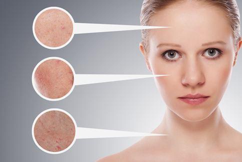 皮膚受到紫外線攻擊,會產生暗沉黑斑等問題,按壓穴位有助於改善。(圖片提供/美忍者)