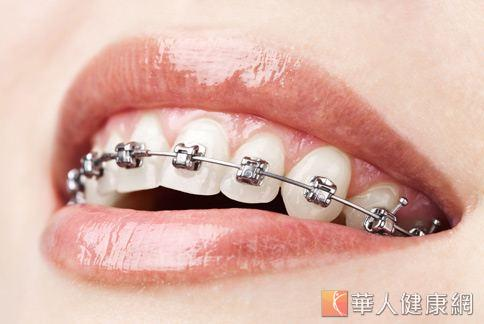 人人都能做牙齒矯正嗎?牙齒矯正專科醫師建議孕婦或罹患牙周病、齲齒等牙科疾病的民眾,治療前應先經審慎評估。