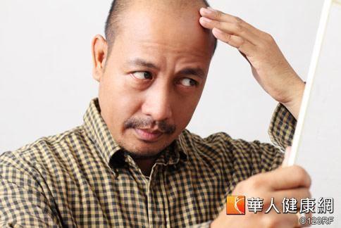 男性大量掉髮不可輕忽,應及早把握35到40歲黃金治療期。