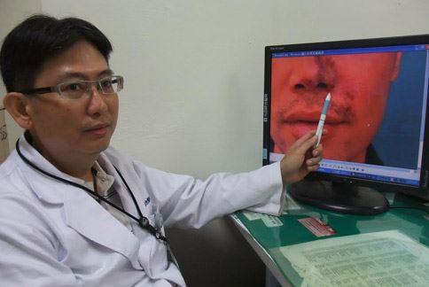 光田綜合醫院急診部高壓氧中心蔡美智醫師表示,注射隆鼻因為施打不慎,誤打到血管引發血管壓迫或栓塞,造成組織缺血,甚至壞死等併發症。