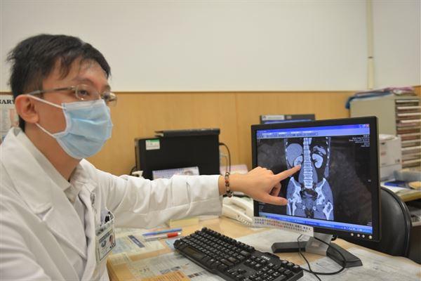 台北慈院泌尿科林佳達醫師提醒民眾,無痛性血尿恐是尿路腫瘤引起,不可輕忽。(圖片/台北慈濟醫院提供)