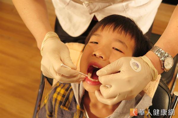 政府目前針對國小一年級和弱勢二年級學童提供免費臼齒窩溝封填的服務。(攝影/駱慧雯)