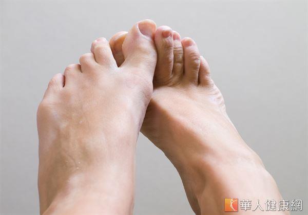 角化型患者由於角化肥厚,皮膚彈性減弱,容易發生龜裂,走路時甚至可能出現疼痛感。