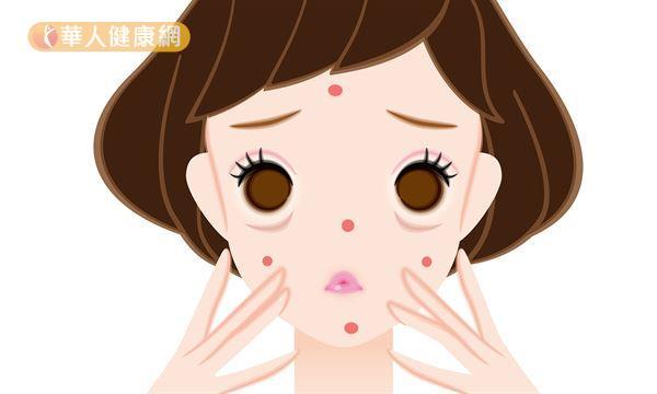 陳玫妃中醫師表示,痘痘不僅是反應肌膚的狀態,更是觀察人體五臟六腑健康狀態的重要指標!