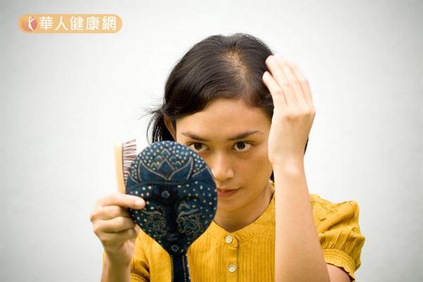 不是只有男性才有掉髮困擾,女性也會因工作壓力大、缺鐵性貧血的原因而掉髮。