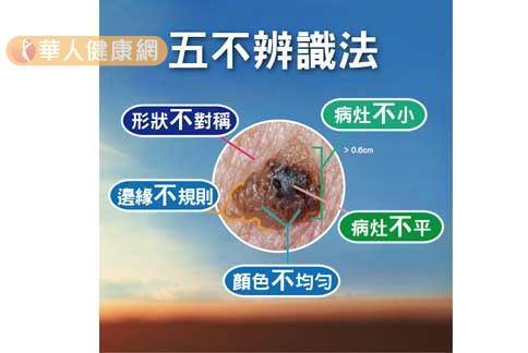 皮膚癌為國人常見10大癌症之一,民眾可透過『5不辨識法』 辨識身上黑痣。(圖片提供/台灣皮膚科醫學會)