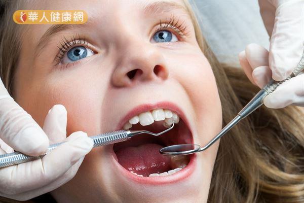 兒童換牙階段的牙齒缺落不齊、大小不一,稱為「醜小鴨時期」。
