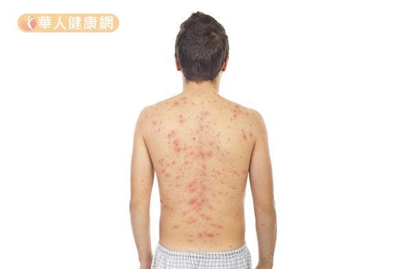 「背部痘痘」的圖片搜尋結果