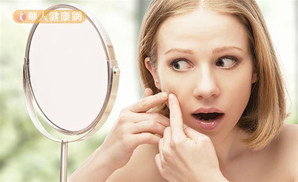 當青春痘發展成熟,出現白色或黃色的膿包時,就必須將膿包擠出。