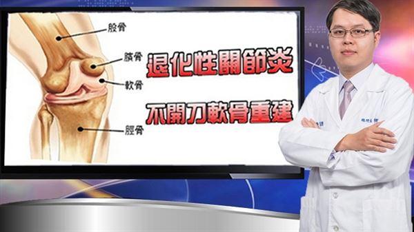鄧翔駿醫師表示,複合增生療法不用開刀,可以達到「抑制軟骨退化,促進軟骨新陳代謝」的目標。(圖片提供/鄧翔駿醫師)