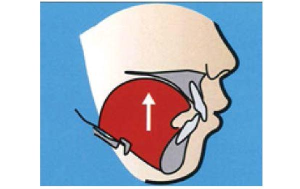 林彥璋醫師表示,日間練習「使勁頂舌」,就是一個簡單、隨時隨地可做、不影響外形的自我鍛鍊方法。(圖片/林彥璋醫師提供)