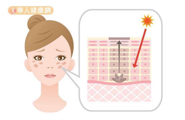 陽光中的紫外線或熱刺激,會激活黑色素細胞,造成皮膚色素沉著形成肝斑。