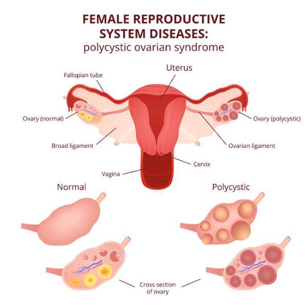 左側是正常卵巢,右側是多囊性卵巢,可以看到右側卵巢有許多小囊泡圍在卵巢周圍。
