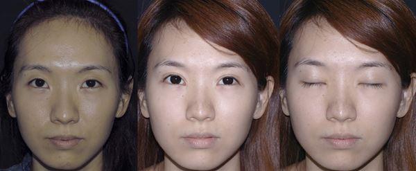 案例二:圖左為原本的眼睛,有大小眼的情況;圖中與圖右為調整過後,共進行了割雙眼皮、提眼瞼肌、開眼頭、開眼尾的手術,術後拉長眼頭、拉寬眼尾、改善大小眼,眼睛放大且明亮,癒合後眼皮幾乎「無疤」。(圖片/王冠中醫師提供)