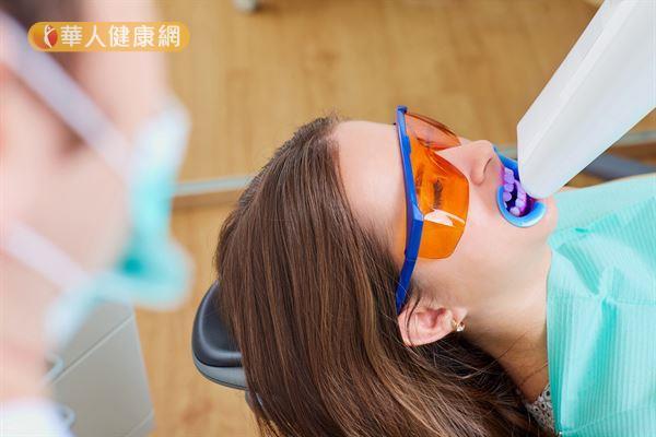 冷光美白是在牙齒塗抹美白藥水之後,再使用LED燈照射,加強美白效果。