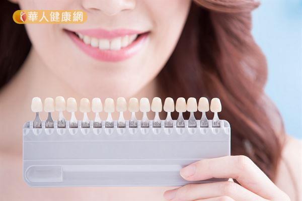 除了市售拋棄式的美白貼片,也有專業的永久性美白貼片技術可以使牙齒看起來潔白。