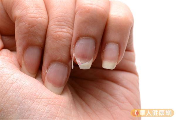 如果肝血不足,半月牙會消失,指甲質地也會變薄容易斷裂、變形、顏色蒼白。