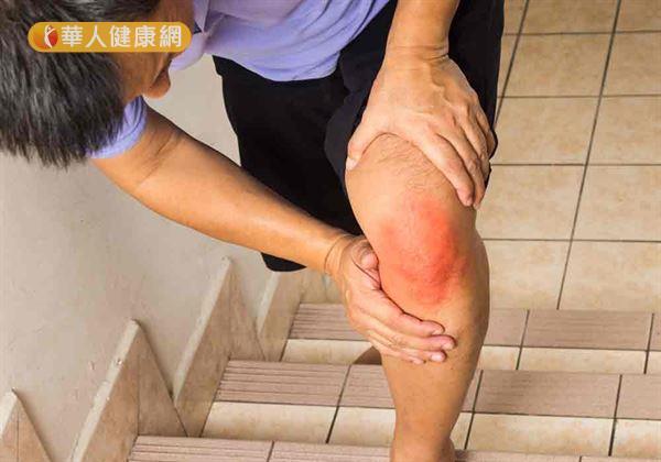 爬樓梯雖有助增強心肺功能、消耗熱量,但卻屬於負重運動,容易造成膝關節磨損。